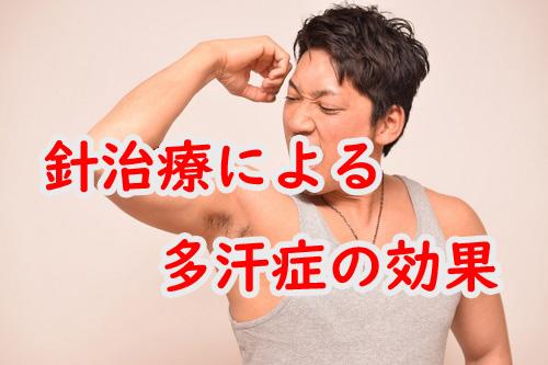 針治療による多汗症の効果